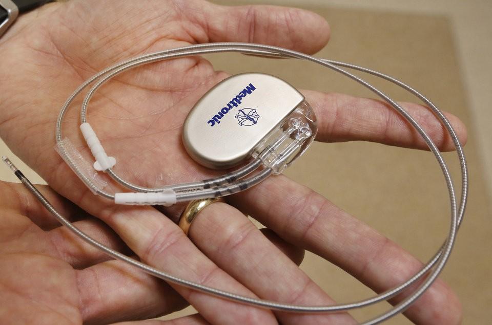 Первый Практический имплантируемый кардиостимулятор