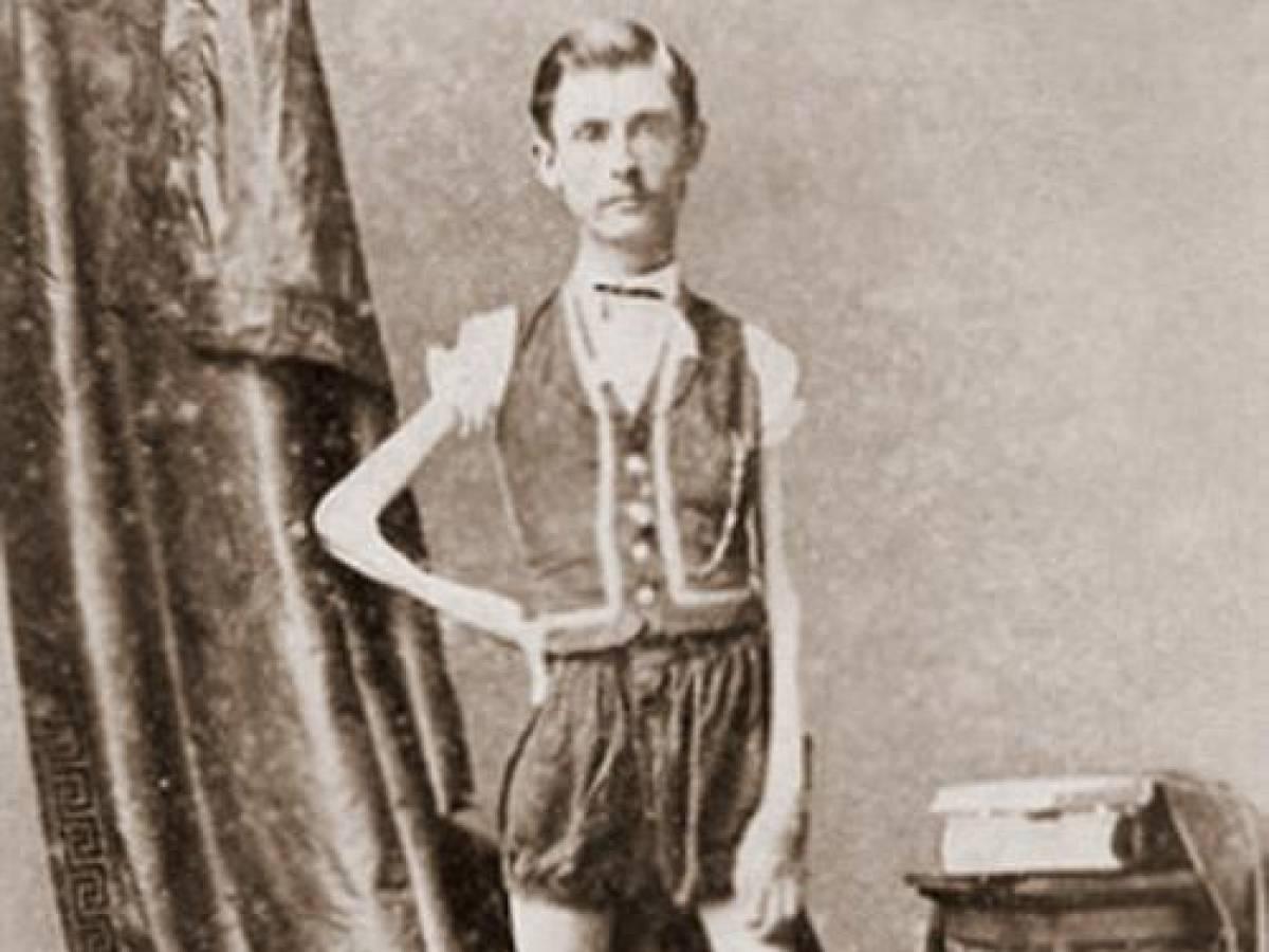 Человек-скелет Исаак В. Спраг